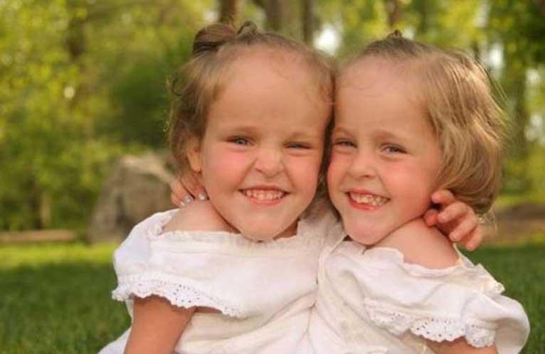 сиамски близначки